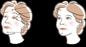 加齢性眼瞼下垂のイメージ