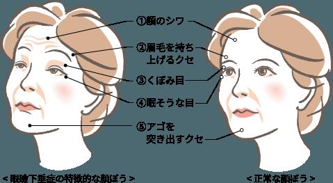腱膜性眼瞼下垂はこのような特徴があります